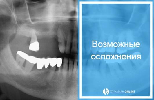 перелом челюсти симптомы