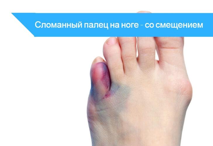 Что делать при переломе пальца ноги в домашних условиях 26