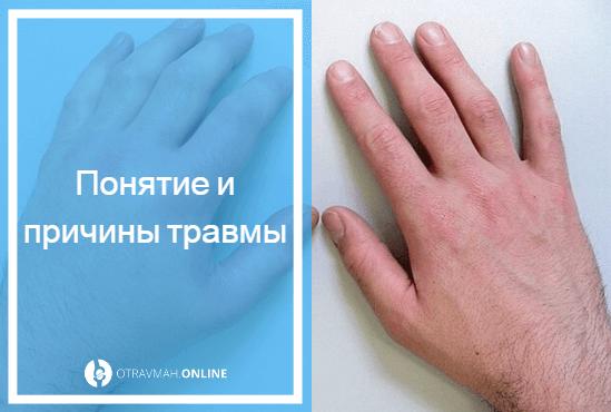перелом руки симптомы у ребенка