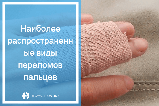 перелом средней фаланги пальца руки