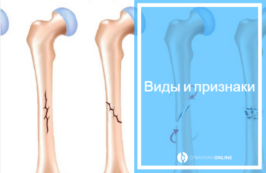 какие симптомы при переломе руки