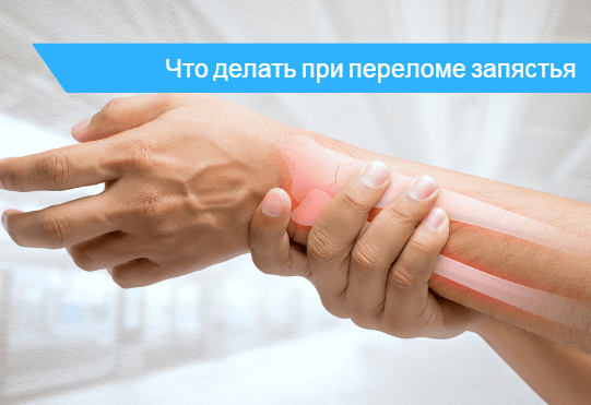 Перелом руки в области запястья 🔎 - фото
