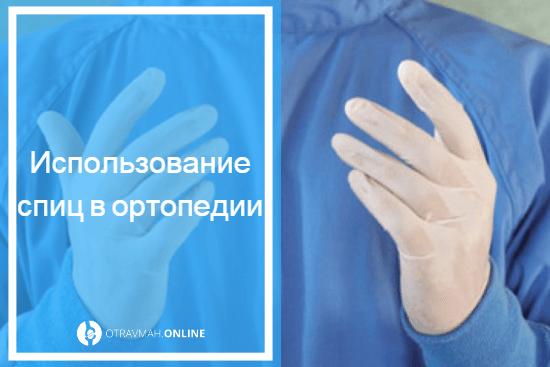 спица в руке после перелома