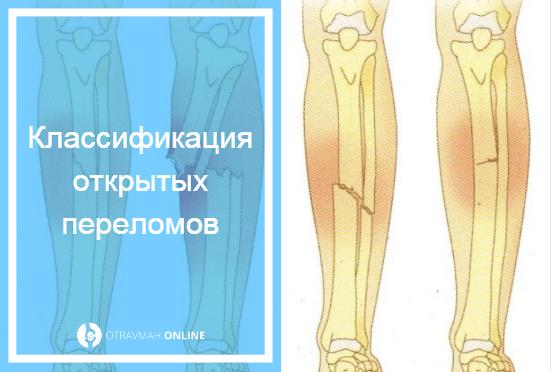 открытый перелом ноги фото