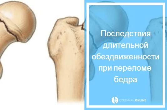 уход за кожей под гипсом перелом бедра