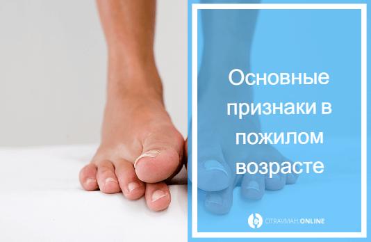 как определить перелом или ушиб стопы