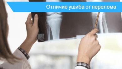 как отличить перелом от ушиба