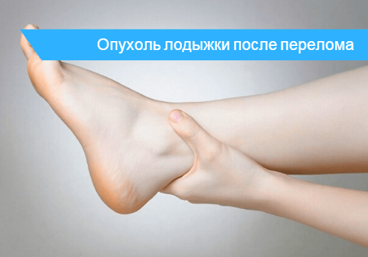 Как сбить опухоль на ноге от перелома 🔎 - почему не проходит