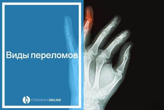 как выглядит сломанный большой палец на руке