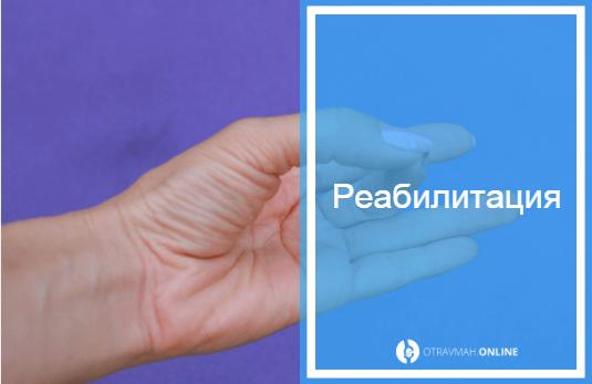 перелом пальца на руке как выглядит