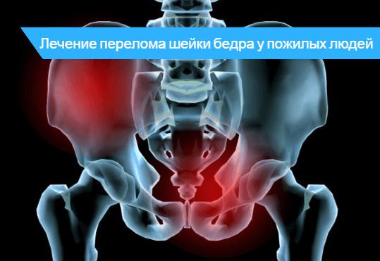 Перелом шейки бедра у пожилых людей методы лечения