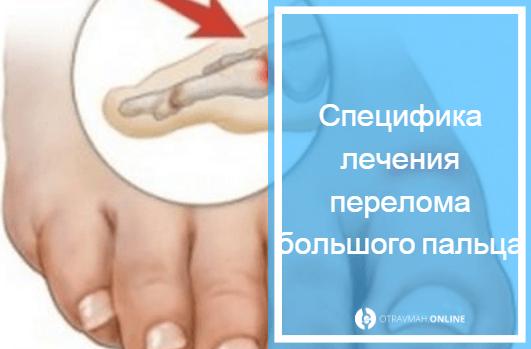 симптомы перелома большого пальца на ноге