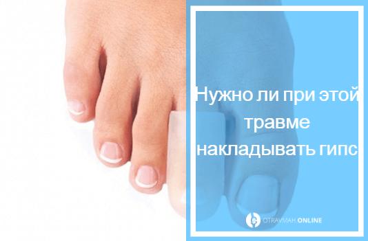 перелом фаланги пальца ноги