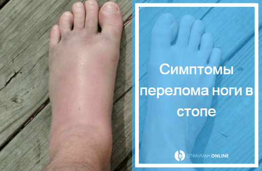 перелом коленной чашечки симптомы