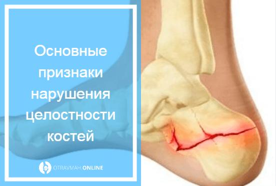 перелом колена симптомы