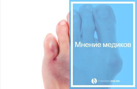 перелом фаланги пальца на ноге