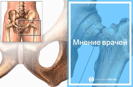 перелом шейки бедра симптомы
