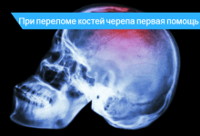 первая помощь при переломе черепа