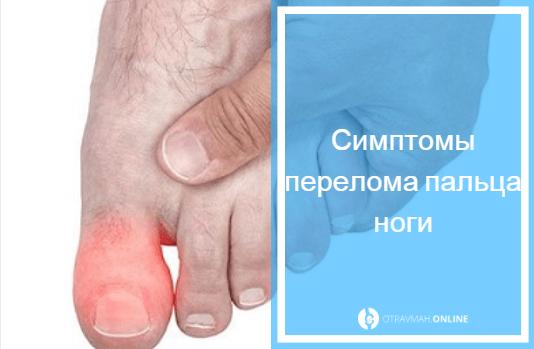 признаки перелома пальца на ноге большой