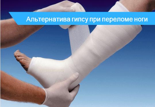 Сломанная нога в гипсе, на сколько накладывают - фото