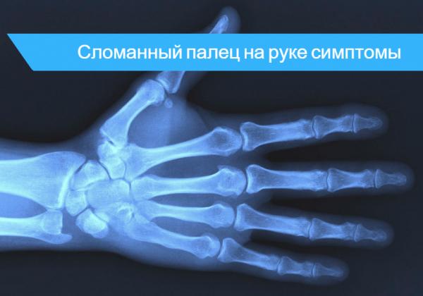 Перелом мизинца на руке симптомы и признаки: лечение и реабилитация