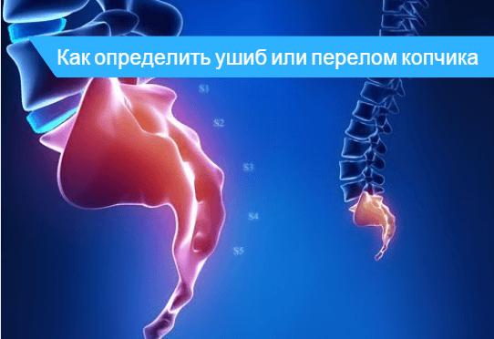 Ушиб копчика или перелом как определить 🔎 - мнение медиков