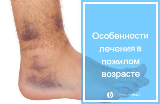 ушиб пяточной кости симптомы и лечение