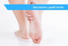 ушиб пятки лечение в домашних условиях