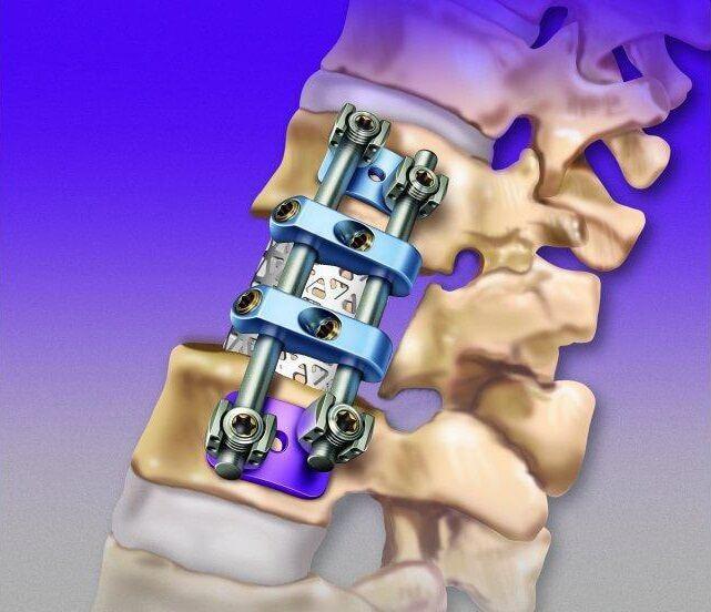 лечение компрессионного перелома позвоночника