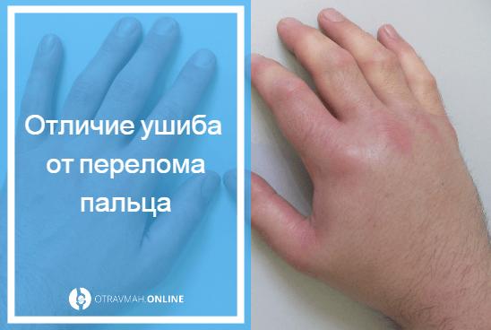 как отличить перелом пальца от ушиба пальца