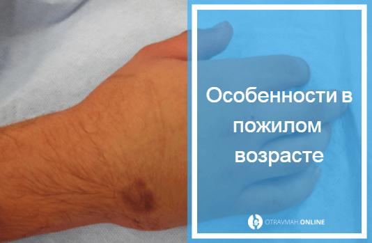 как отличить перелом от ушиба пальца если