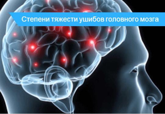 Ушиб головного мозга средней степени тяжести