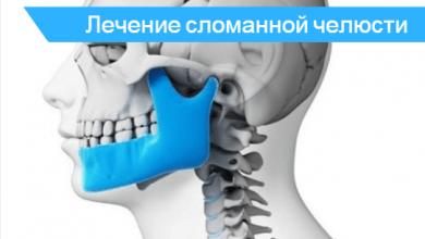 опухоль лодыжки после перелома