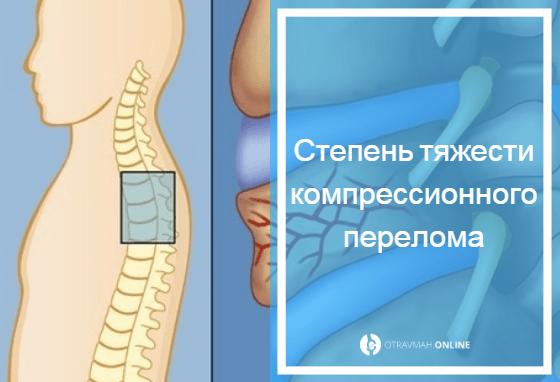 компрессионный перелом позвоночника грудного отдел