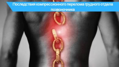 компрессионный перелом позвоночника грудного отдела позвоночника