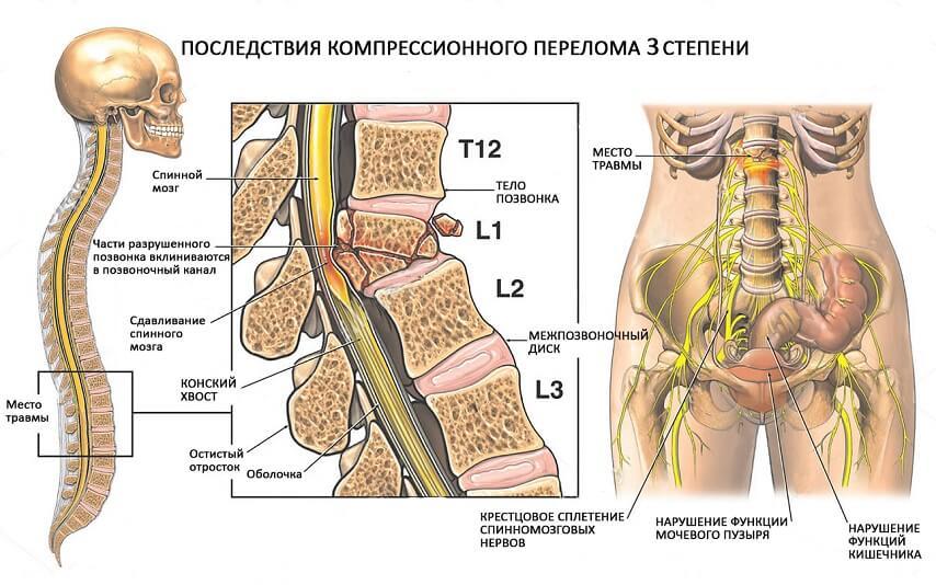 компрессионный перелом позвоночника как лечить