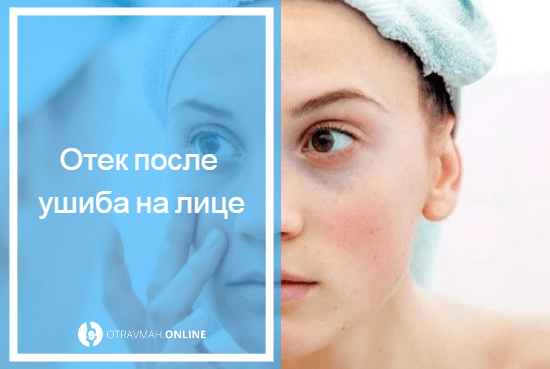 чем снять отек после ушиба на лице