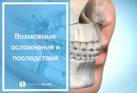 опухоль при переломе лодыжки
