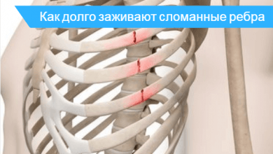 сколько заживают сломанные ребра