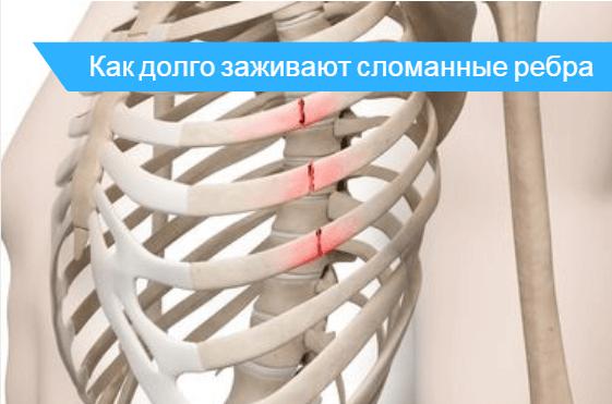 Сколько срастается перелом: как быстро заживает кость