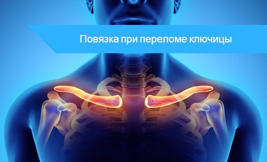 Как накладывается фиксирующая повязка при переломе ключицы дезо восьмиобразная или косыночная