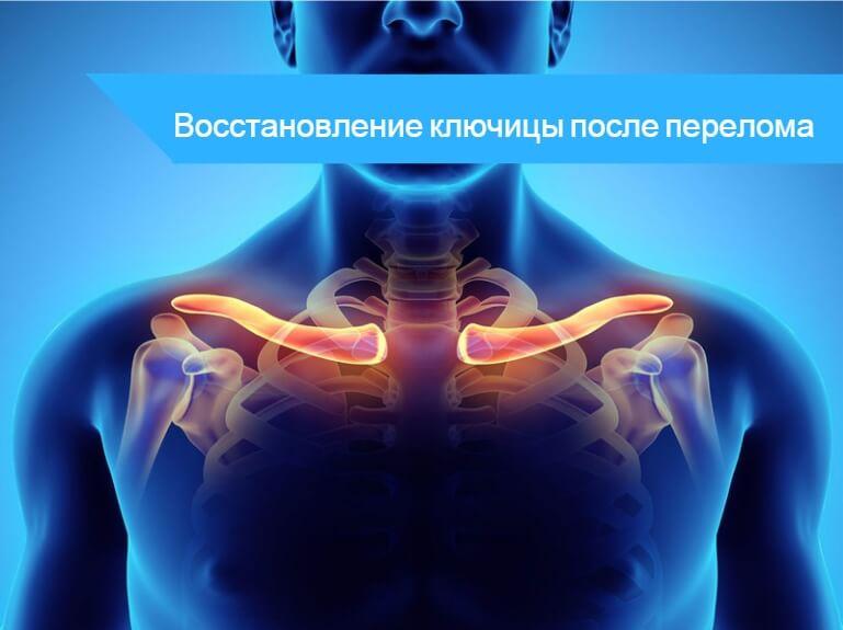 Перелом ключицы со смещением симптомы операция и восстановление