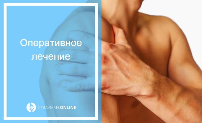 вывих плечевого сустава лечение в домашних условиях
