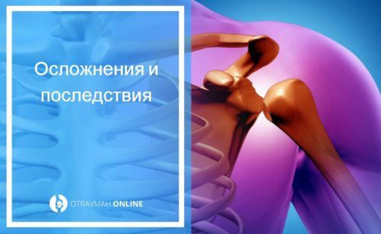 лечение вывиха плечевого сустава
