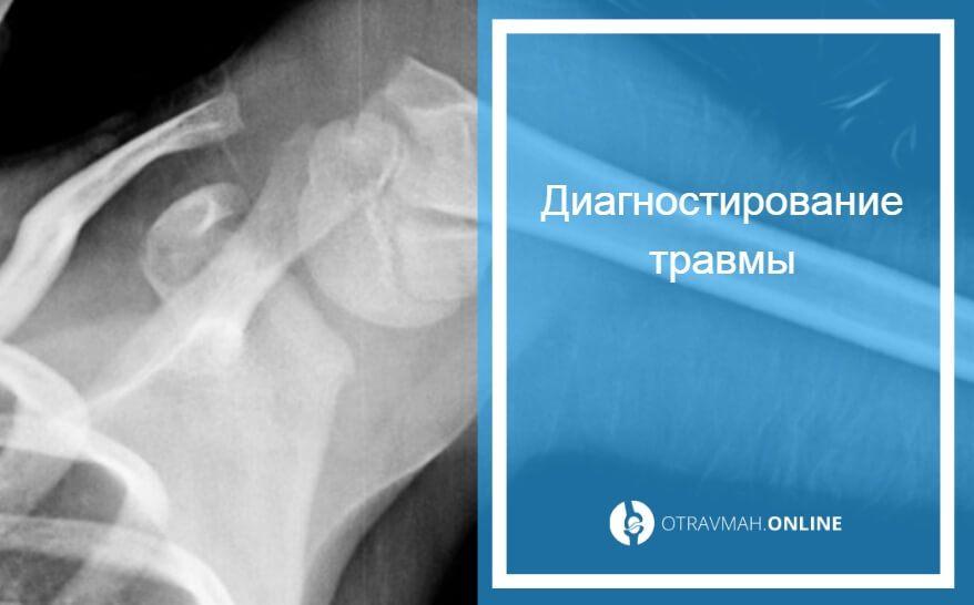 перелом плечевой кости оскольчатый со смещением