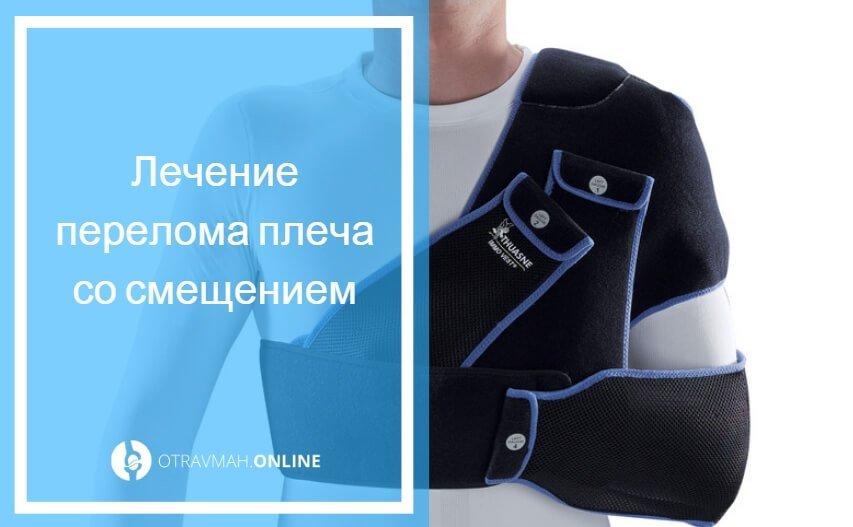 оскольчатый перелом плечевой кости со смещением