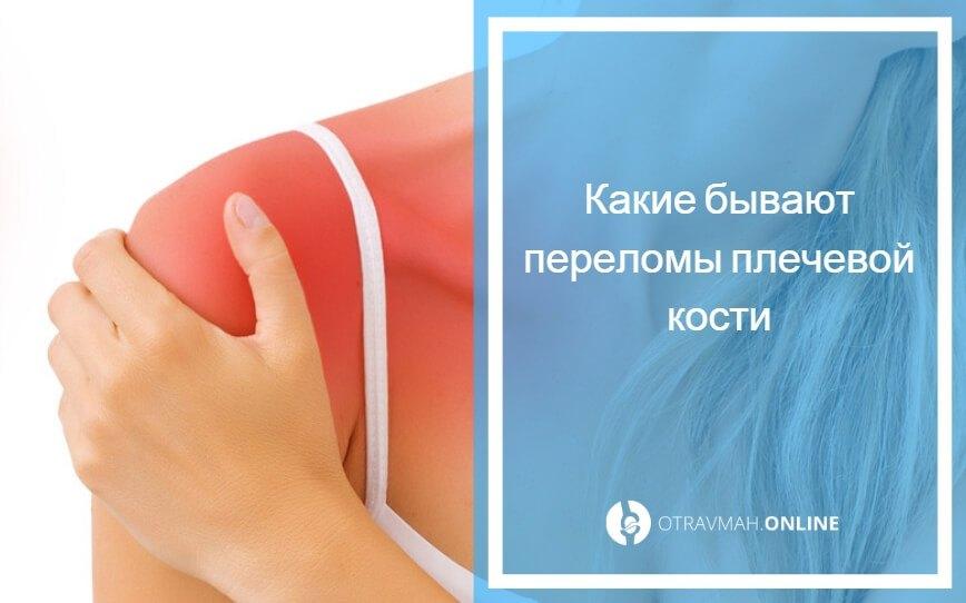 перелом со смещением плечевая кость