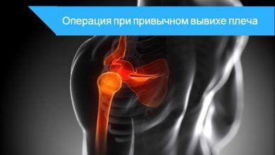 операция привычный вывих плеча