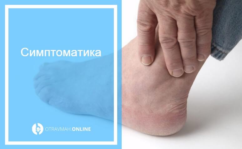 первая помощь при открытом переломе голени