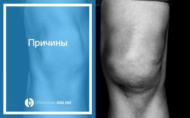 перелом мыщелка коленного сустава